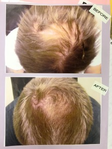 before and after LLLT hair replacement treatment