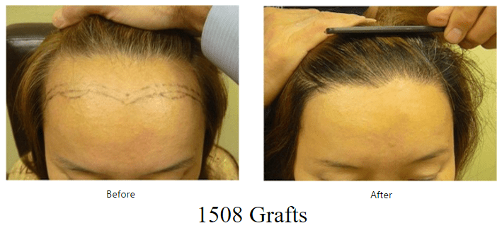 before-after-1508-grafts