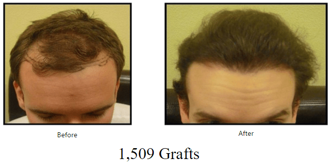 before-after-1509-grafts