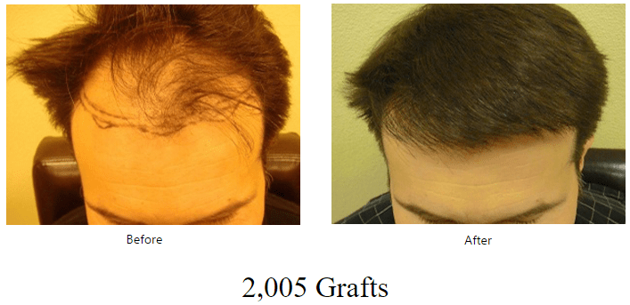 before-after-2005-grafts