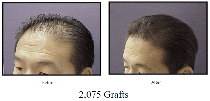 before-after-2075-grafts