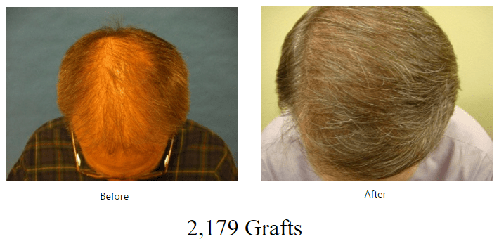 before-after-2179-grafts