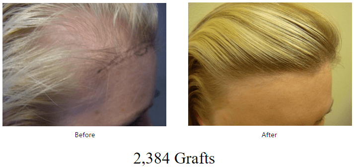 before-after-2384-grafts