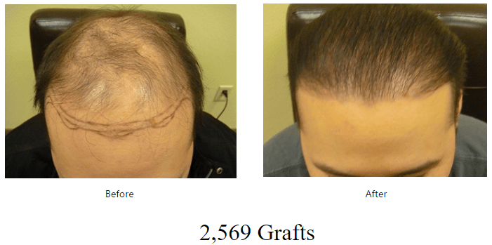 before-after-2569-grafts