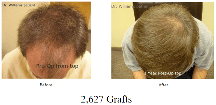 before-after-2627-grafts
