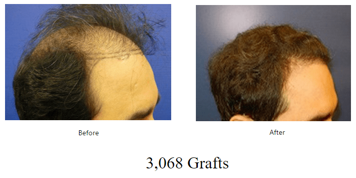 before-after-3068-grafts