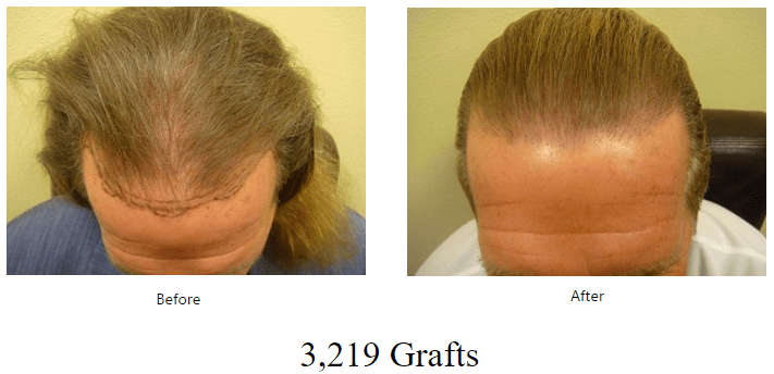 before-after-3219-grafts