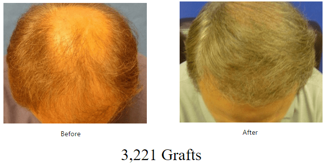 before-after-3221-grafts