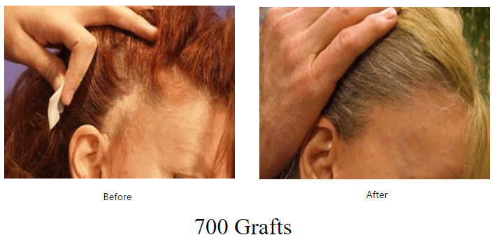 before-after-700-grafts