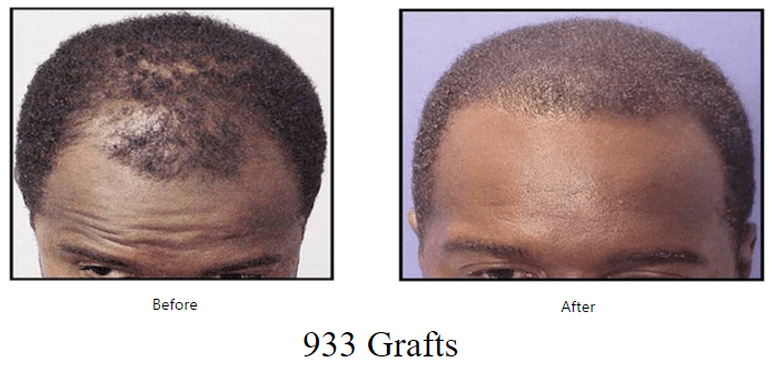 before-after-933-grafts