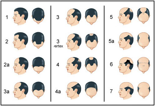 The Norwood Hair Loss Scale