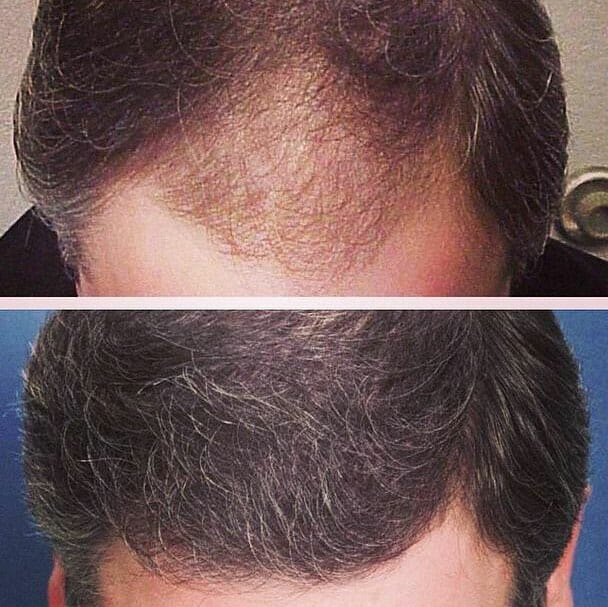 Advanced Medical Hair Institute | Before and After Results