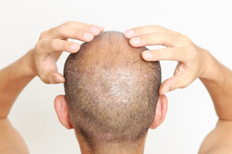man with thin hair doing self scalp massage