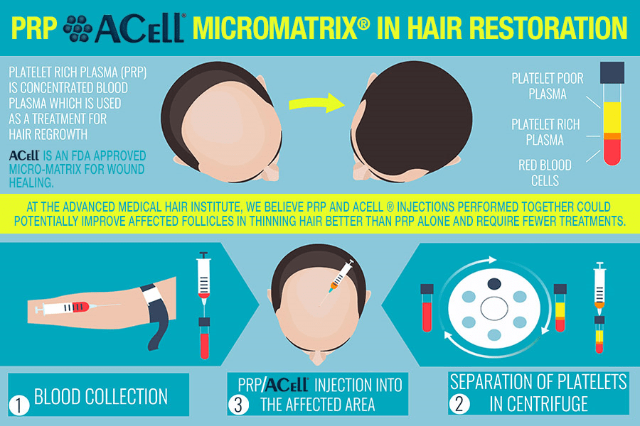 Prp Acell Micromatrix Hair Regrowth Treatment Free
