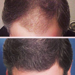 Advanced Medical Hair Institute   Before and After Results